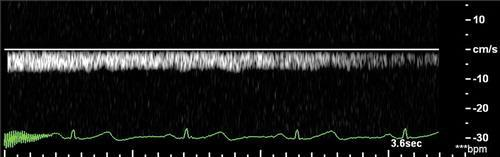 A B C D Figure 7 Effect of patient factors on the appearance of the spectral Doppler waveform.