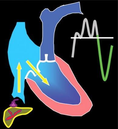 (b) During systole, the ventricle contracts and the tricuspid annulus moves toward the cardiac apex. Blood regurgitates retrograde through the tricuspid valve into the atrium, IVC, and hepatic veins.