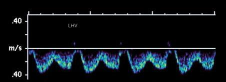 9 Relationship of the Hepatic Veins to Each Other Mối quan hệ của các tĩnh mạch gan với nhau Although the spectral waveform patterns in the three hepatic veins of a single patient are usually