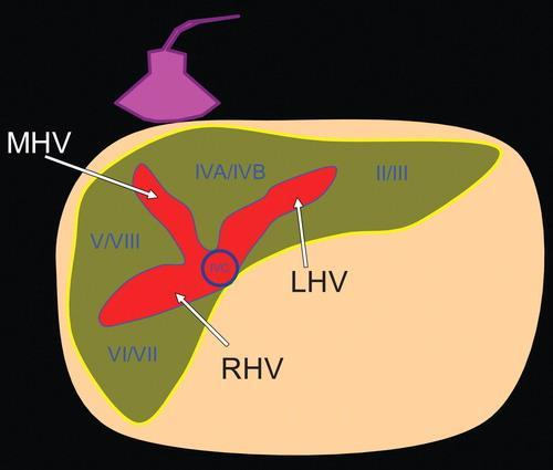 In autopsy studies, between three and 50 minor hepatic veins have been found, which drain predominantly Couinaud segments I, VI, and VII and the area just anterior to the retrohepatic IVC (8,9).